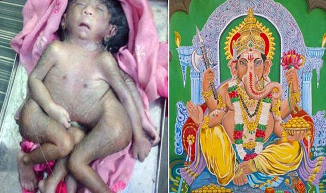 Συρρέουν στην Ινδία για να δουν από κοντά ένα αγόρι που γεννήθηκε με οκτώ πόδια