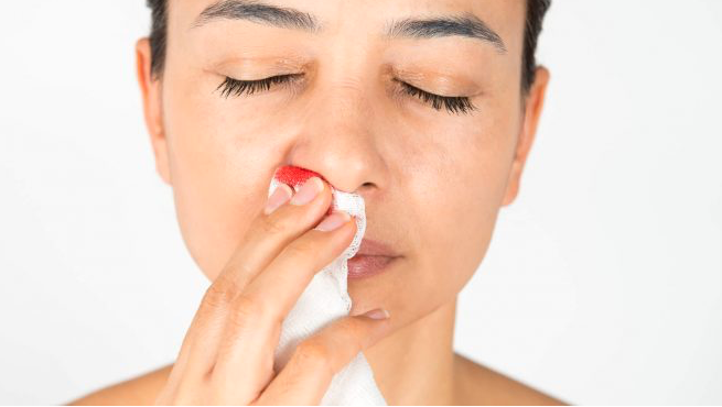 Αιμορραγία μύτης: Γιατί και τί να κάνετε;